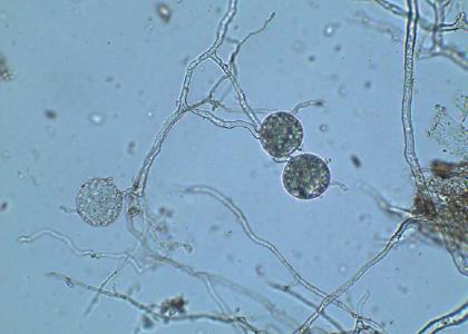 L_Glomus-Iranicum-var-tenuihypharum-2.png
